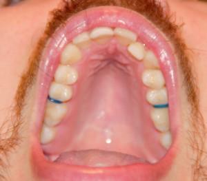 On voit les élastiques bleus qui permettent d'écarter les dents du fond.