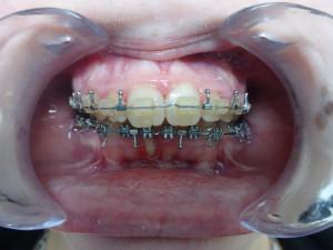 _21-11-2017 Intra-orale Face Fin
