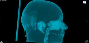 Post-op: on voit ici que l'espace respiratoire a gagné au moins 1 cm (c'est l'avancée des mâchoires qui favorise cela).